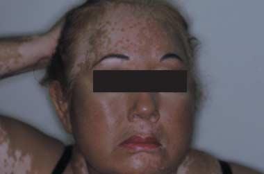 Treatment of vitiligo with broadband ultraviolet b and vitamins